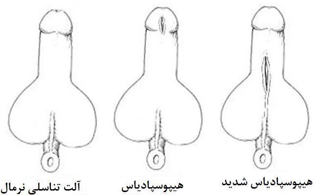 عکس هیپوسپادیاس