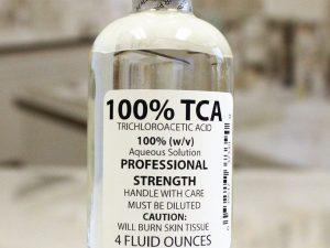 درمان زگیل تناسلی با محلول