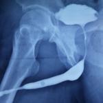 Urethral stricture01