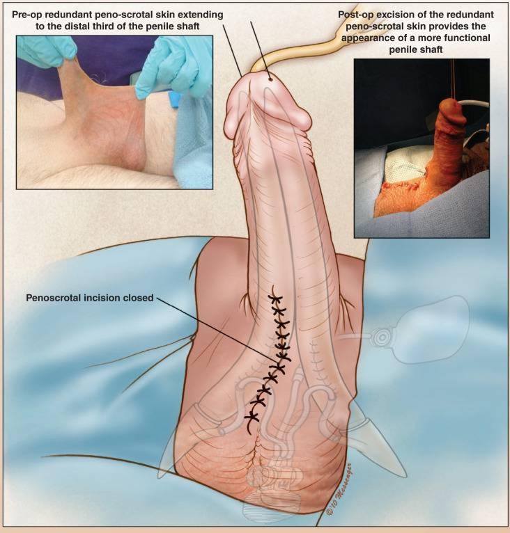درمان پوست اضافه بیضه