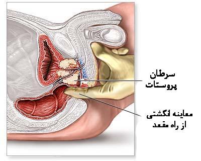 Image result for پروستات