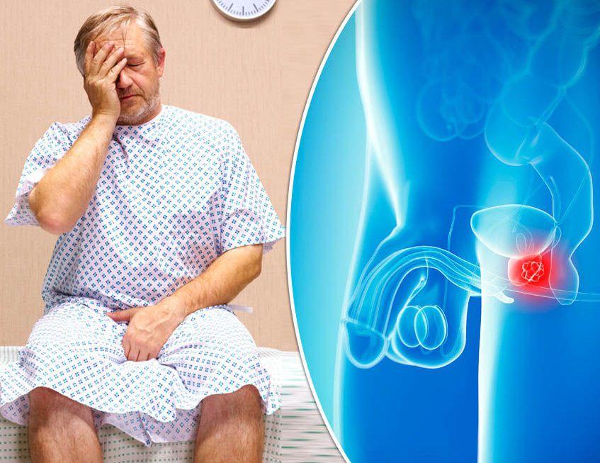 دلیل سرطان پروستات