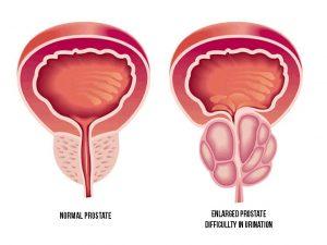 درمان بزرگی پروستات با طب سنتی