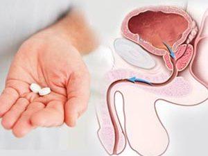 درمان سرطان پروستات