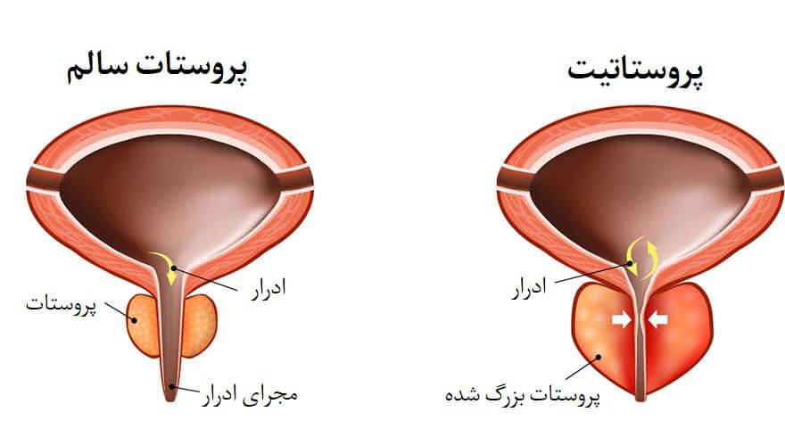 پروستاتیت