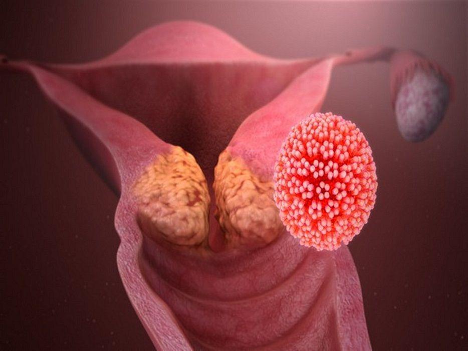 سرطان دهانه رحم و بیماری hpv