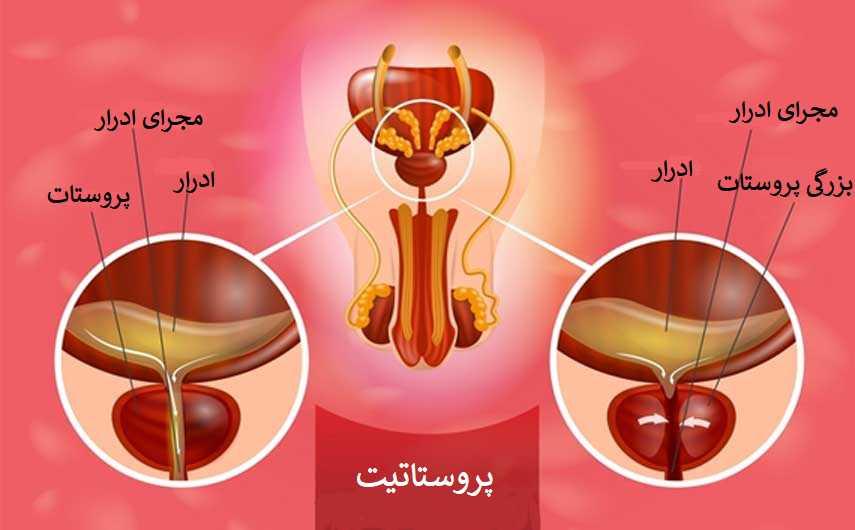 التهاب پروستات