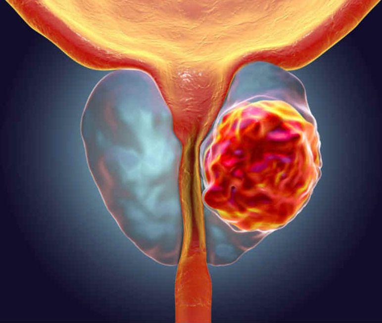 سرطان پروستات از عوارض رابطه از پشن برای پسران