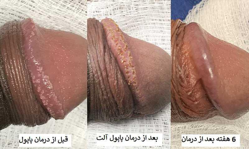 درمان پاپول مرواریدی آلت تناسلی