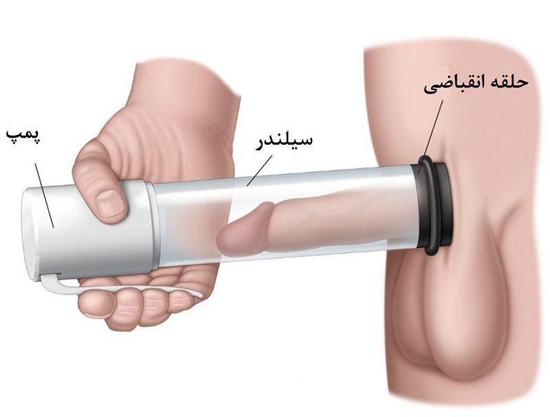 درمان زود انزالی در افراد دیابتی