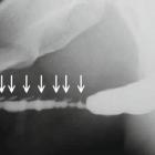 تنگی مجرای ادراری ناشی از التهاب پوستی (بیماری لیکن اسکلروزیس)