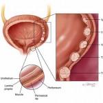 در مورد سرطان مثانه چه می دانیم؟