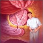 آنچه جوان تر ها بایستی در مورد ورم و التهاب پروستات بدانند
